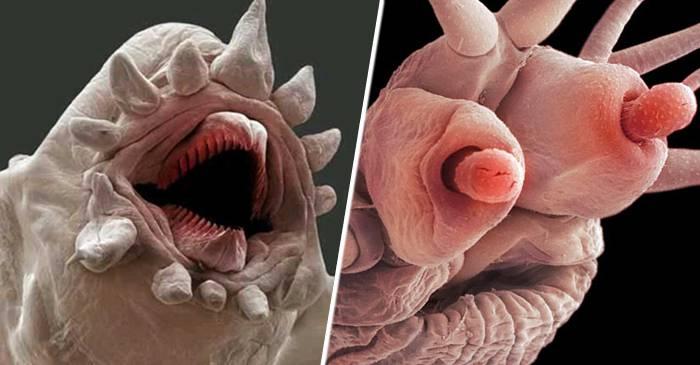 paraziti ai corpului uman)