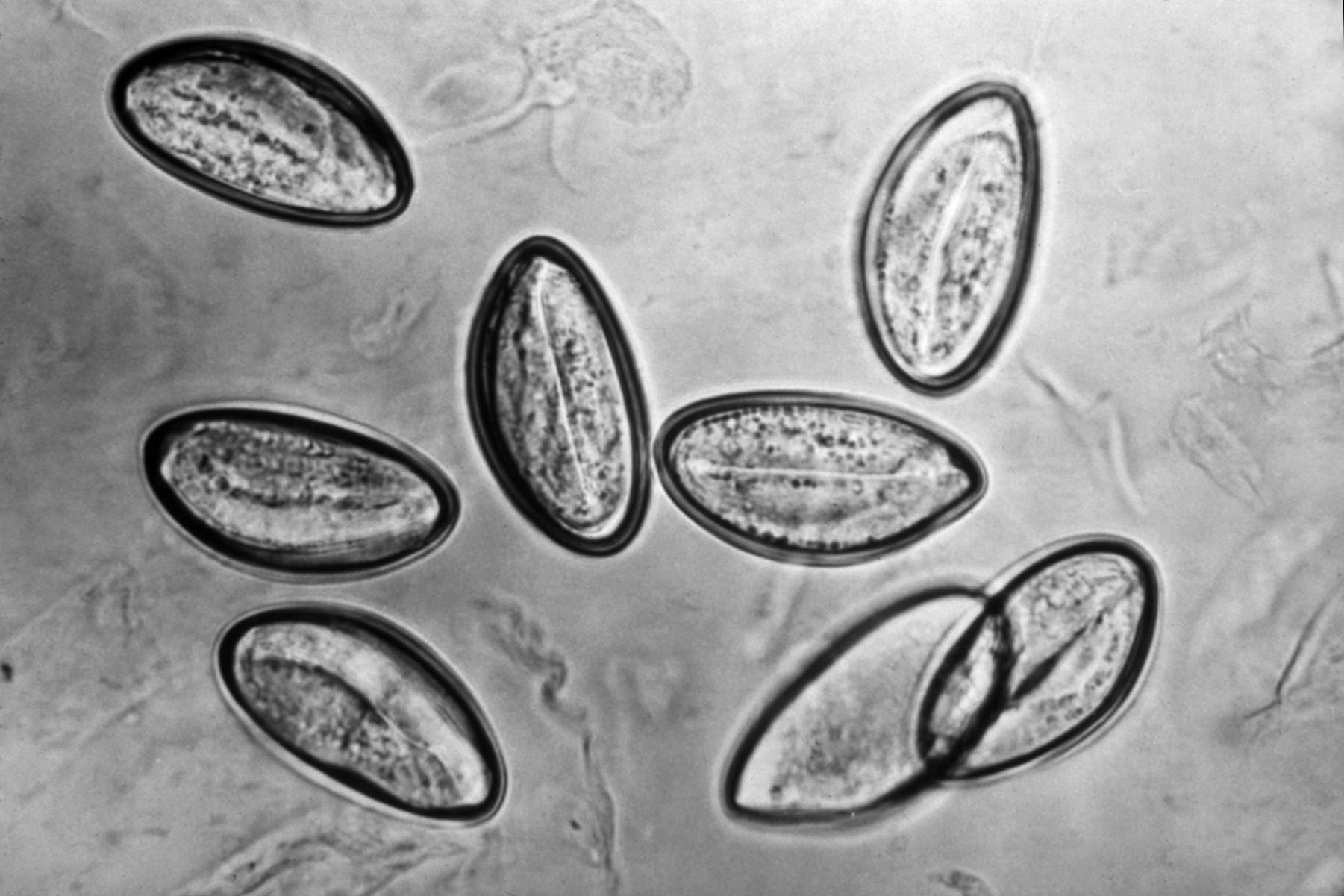 enterobius vermicularis the pinworm) îndepărtați negii înainte de naștere
