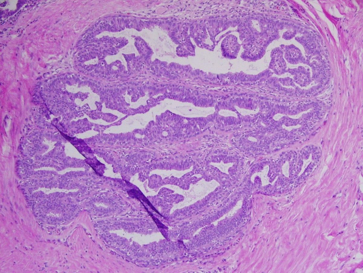 Papilloma of skin histology