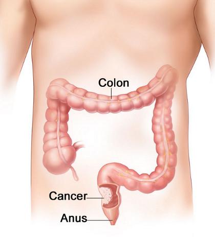 cancer de colon simptome cauze)