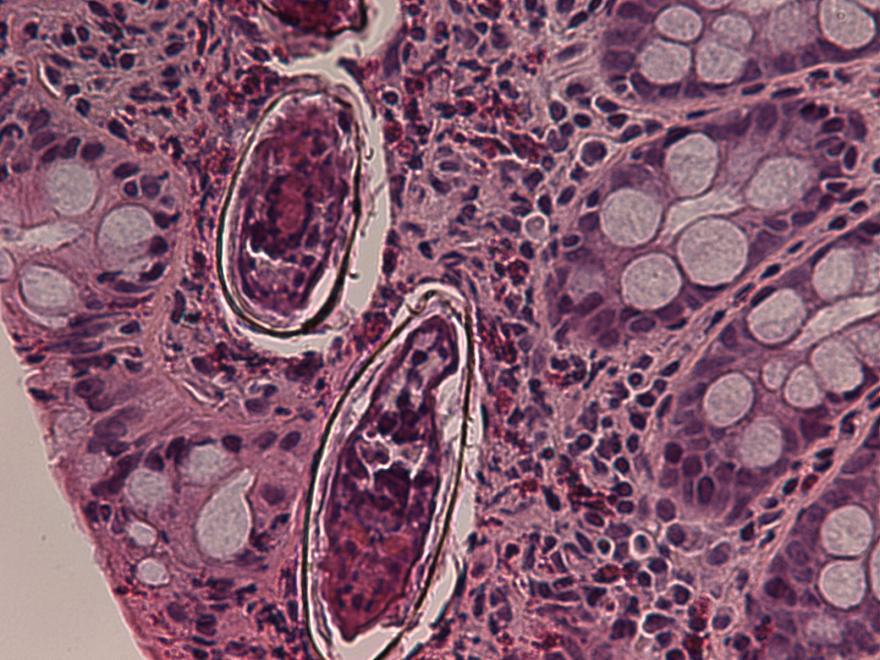 virusi worms tenii pot absorbi alimentele