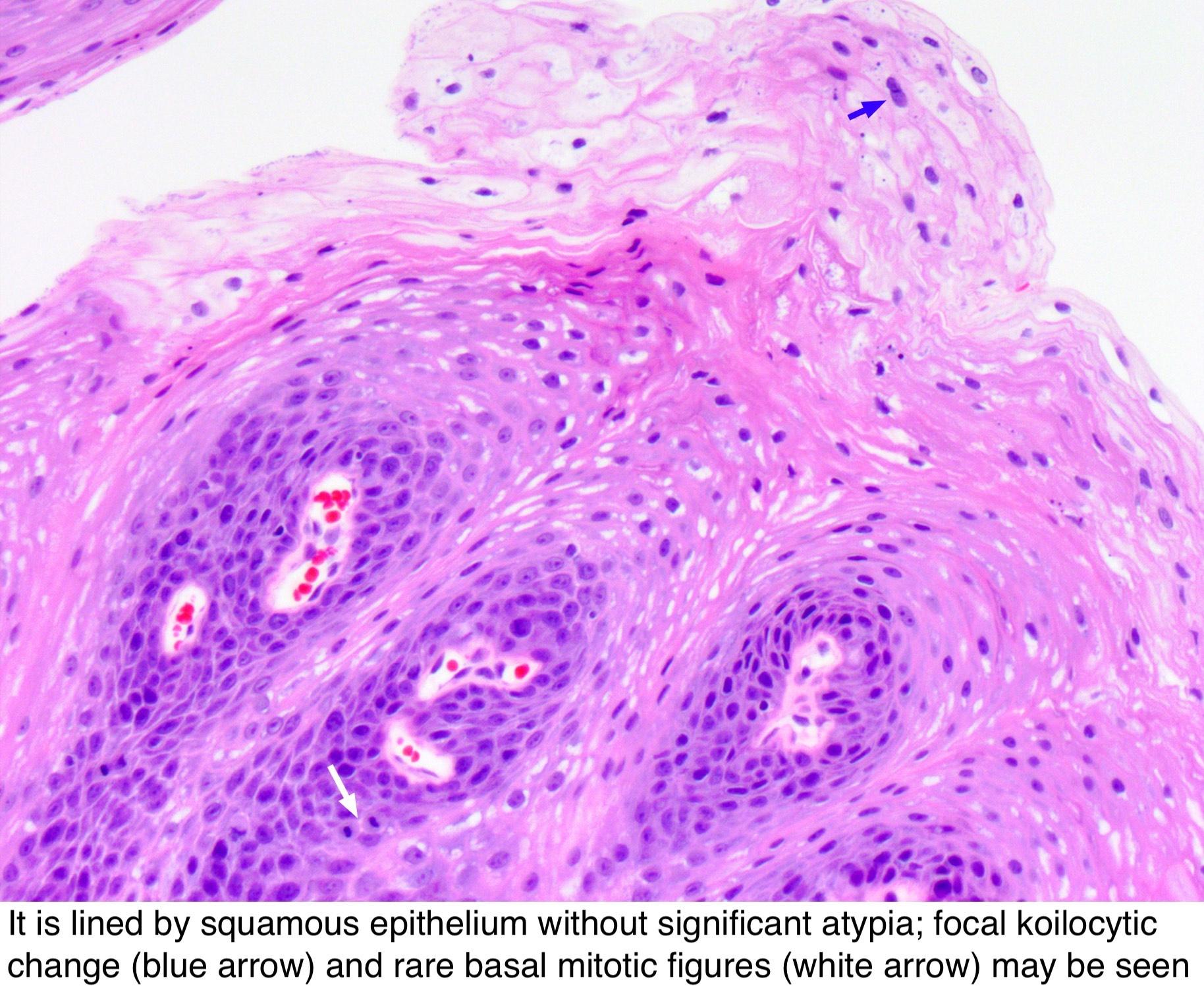 squamous papilloma nostril