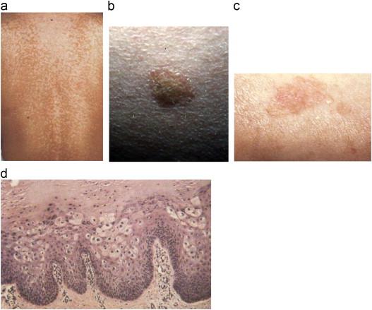 human papilloma virus outbreak cdc giardiaza
