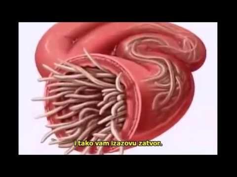 simptomele umflăturii sunt frecvente