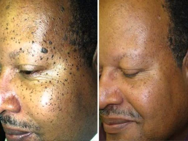Papilloma removal face, Squamous cell papilloma face, Cell papilloma face