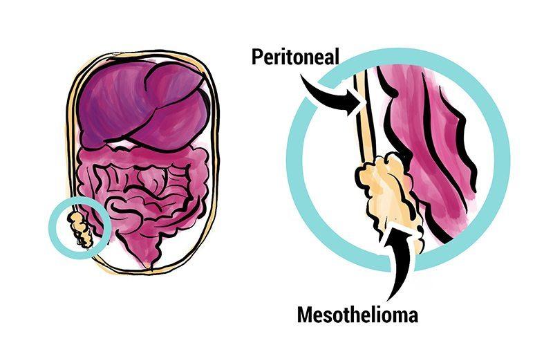 peritoneal cancer medscape