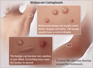 wart treatment molluscum
