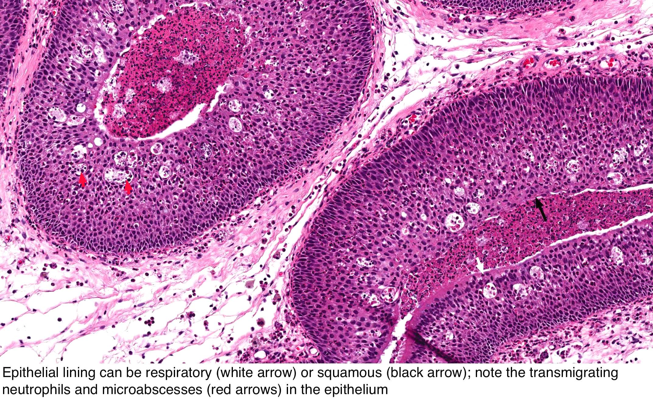 urothelial papilloma icd 10