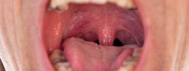papiloma en el boca