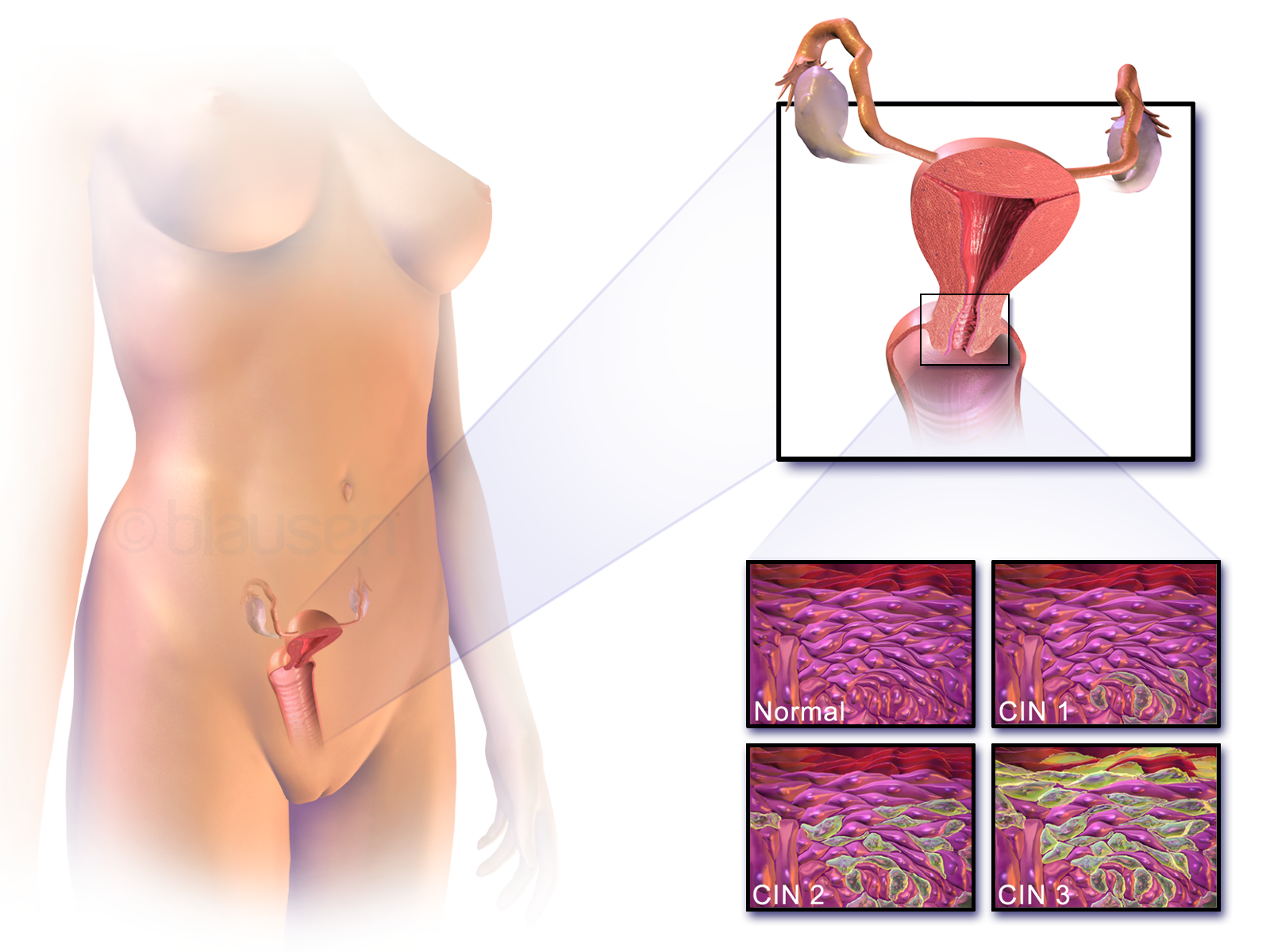 Hpv definition and symptoms. Hpv and liver cancer