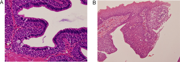 Inverted papilloma papillary tumor