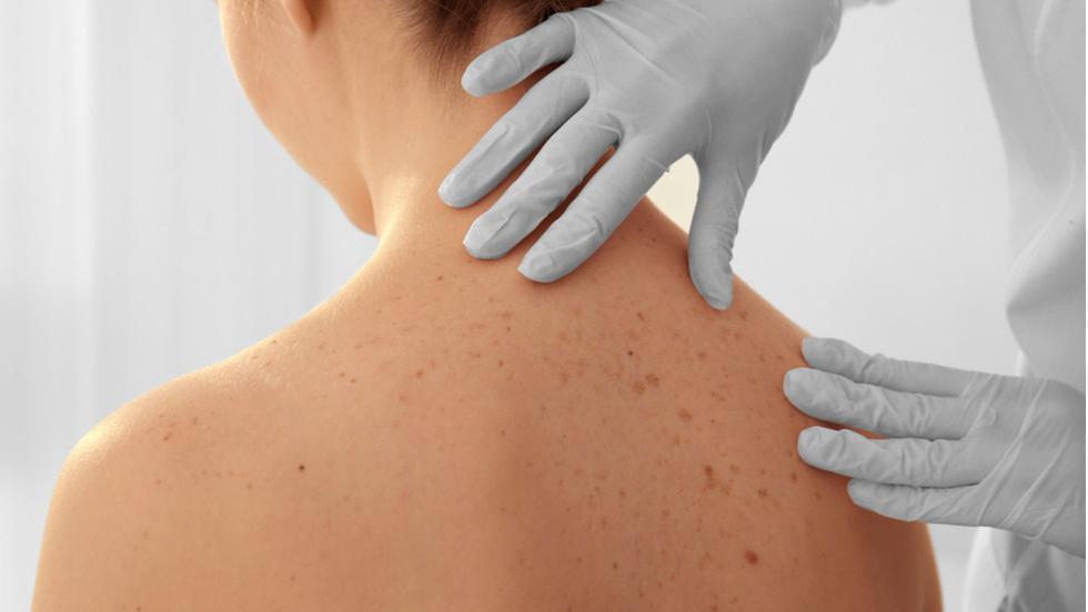cancerul de piele in romania tratamentul verucilor genitale forum