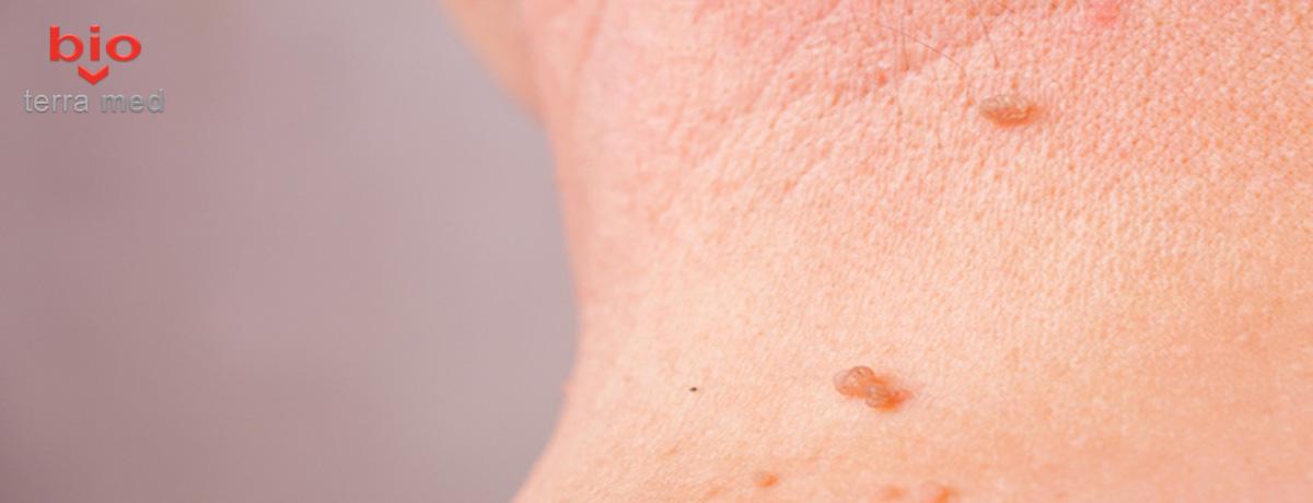 cum să aducem papilomii sub axilă