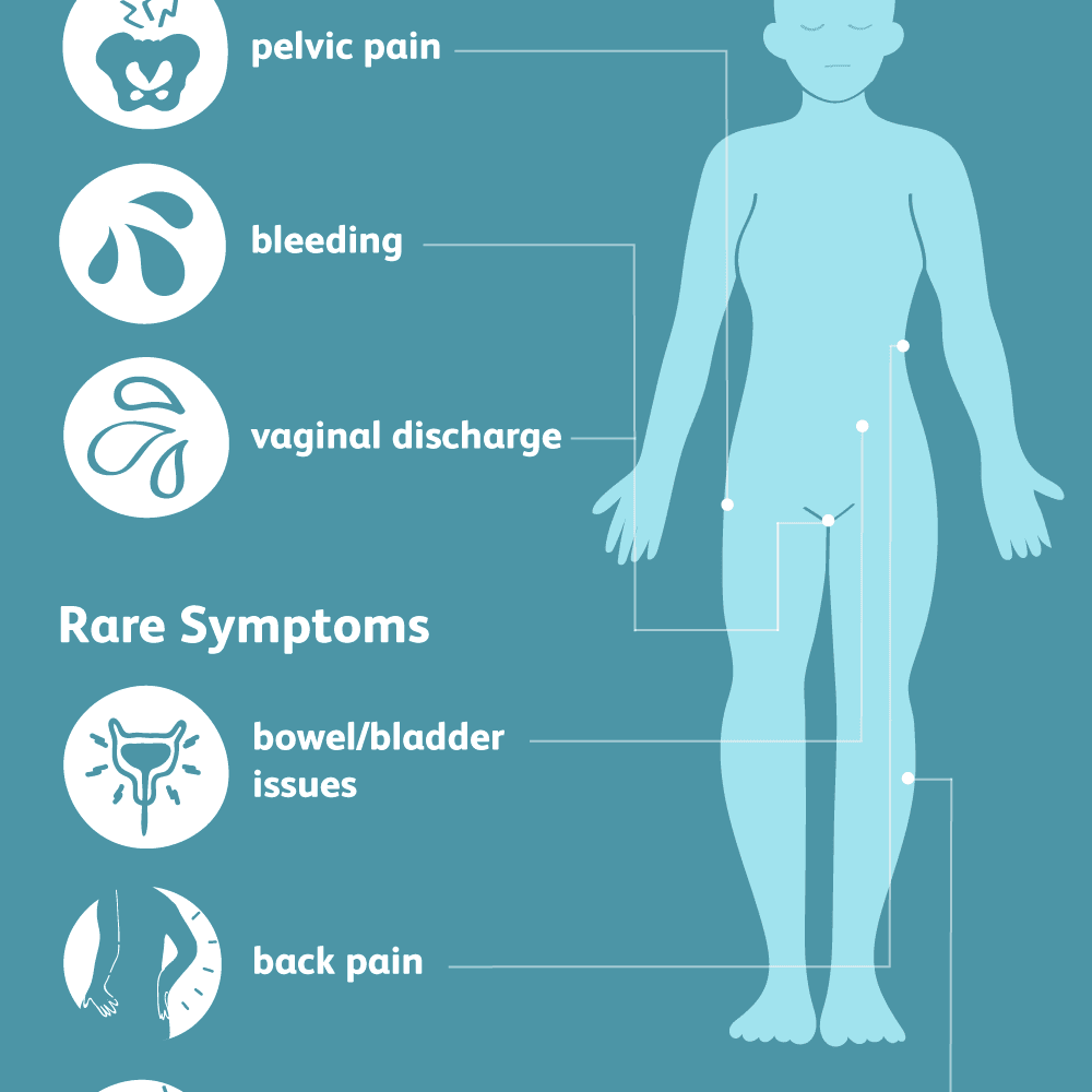 Endometrial cancer lower back pain. Meniu de navigare