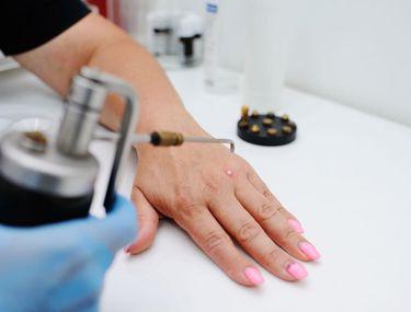 metoda de infectare cu negi genitale
