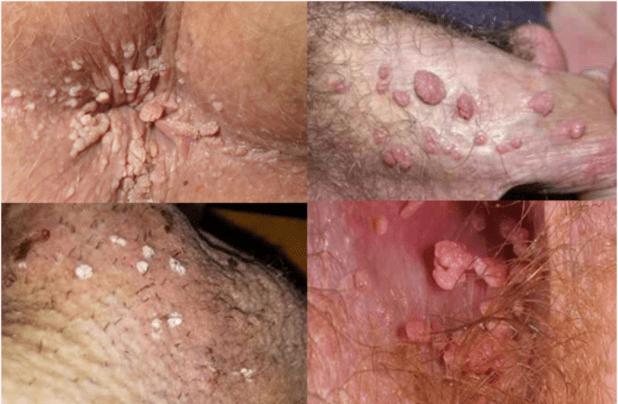 treatment for tongue papillae îndepărtarea parazitului de sodă