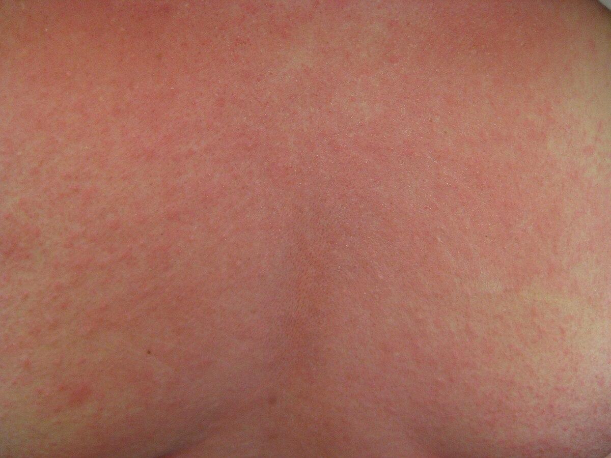 Hpv et urticaire, Papillomavirus et urticaire