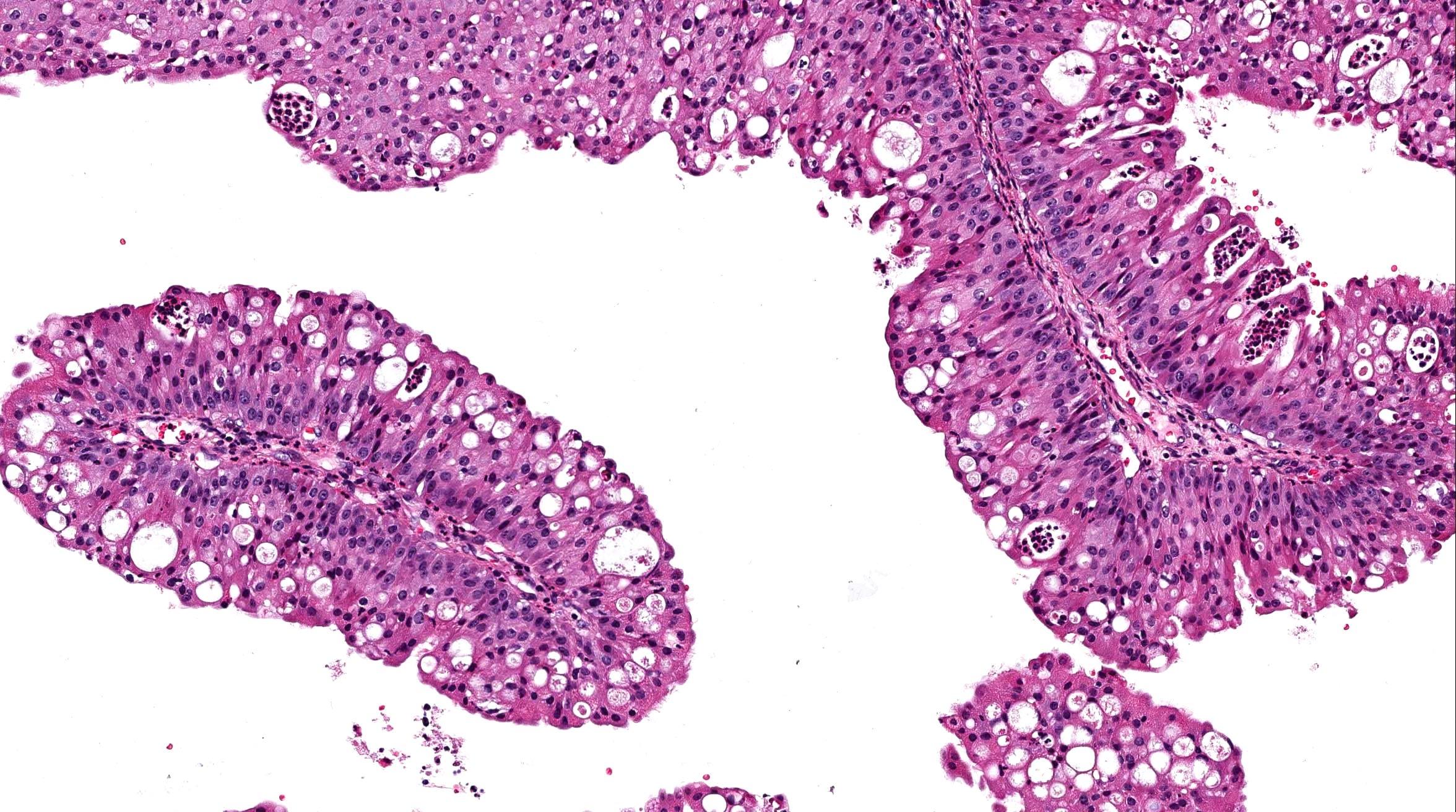 SOLARAY Parasites Cleanse - 60 comprimate (Suplimente nutritive) - Preturi Amebieza giardiozei