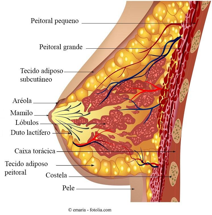 papilom mamar intraductal