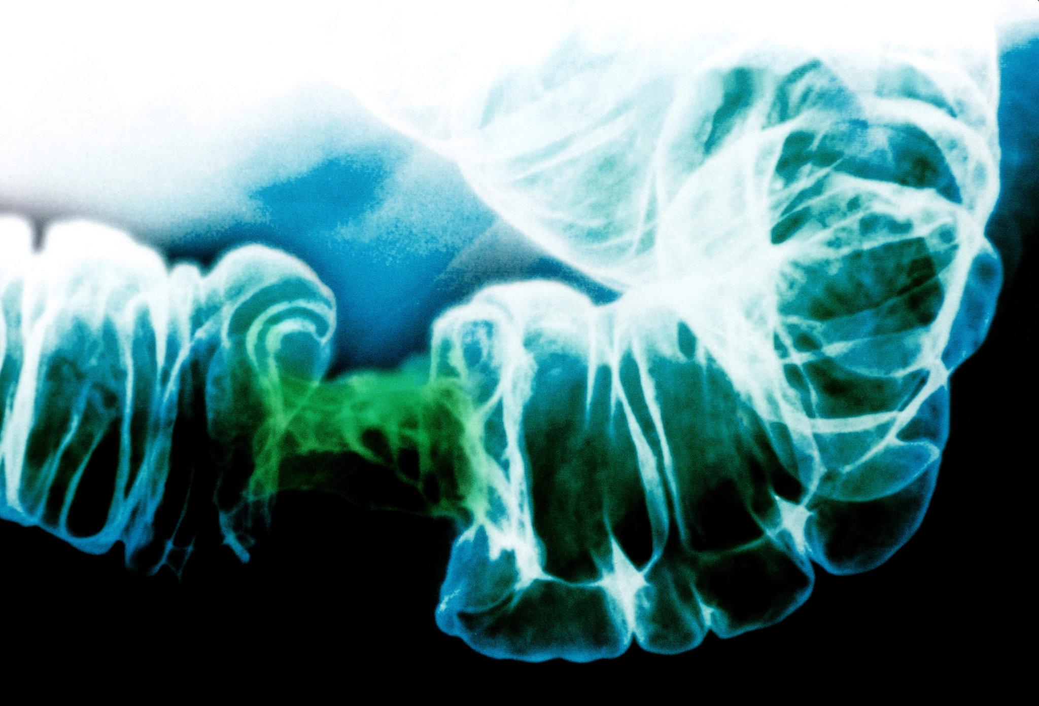 eliminați papiloma penza centru detoxifiere herghelia