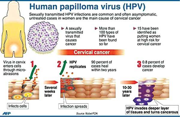 papilloma invertito cause ouă de helmint