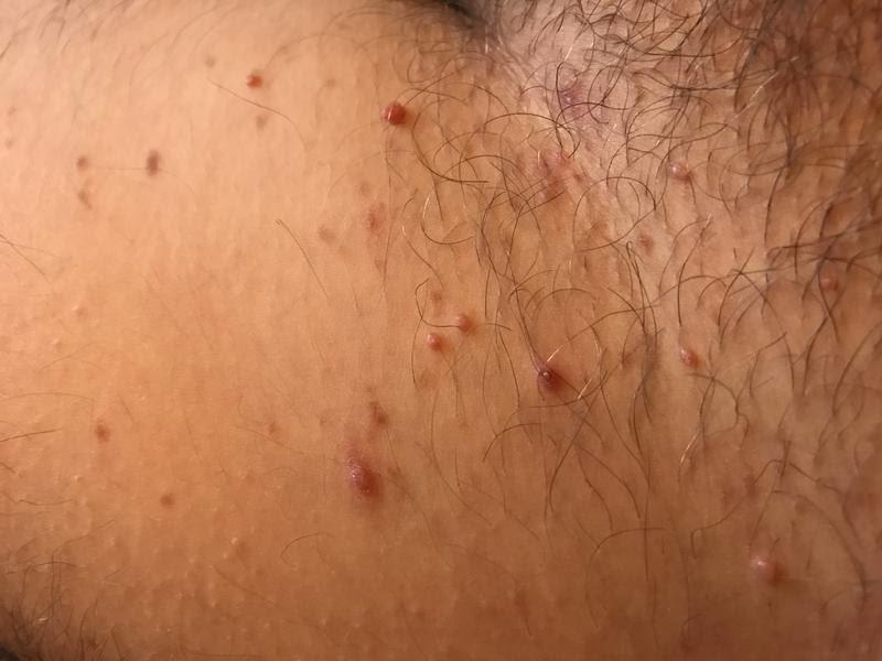 Hpv viren symptome - anaairporthotel.ro