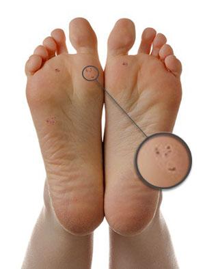 verruca hurting foot
