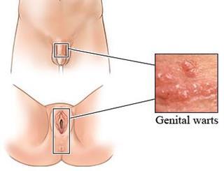 virus del papiloma en mujeres sintomas