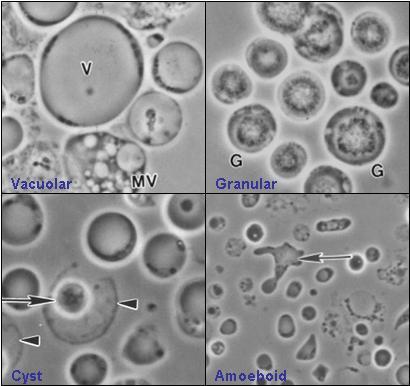 hpv cancer du col tratament cu paraziti pentru recenzii pentru copii
