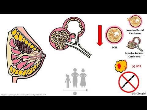condilom vulvar pentru cauterizarea verucilor genitale