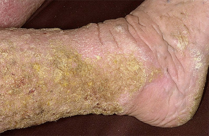 lymphedema papillomatosis treatment hiv and bladder infection