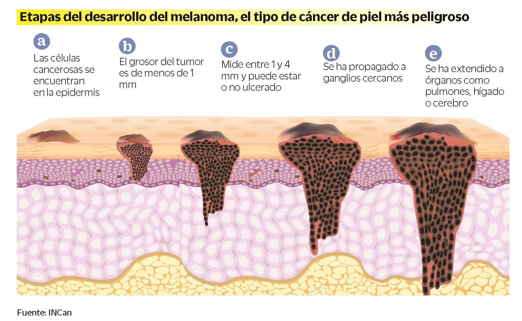Que cancer es mas frecuente Que cancer es mas peligroso