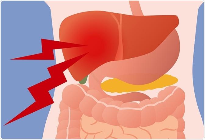 cancer vesicula biliar papillomavirus genital simptome