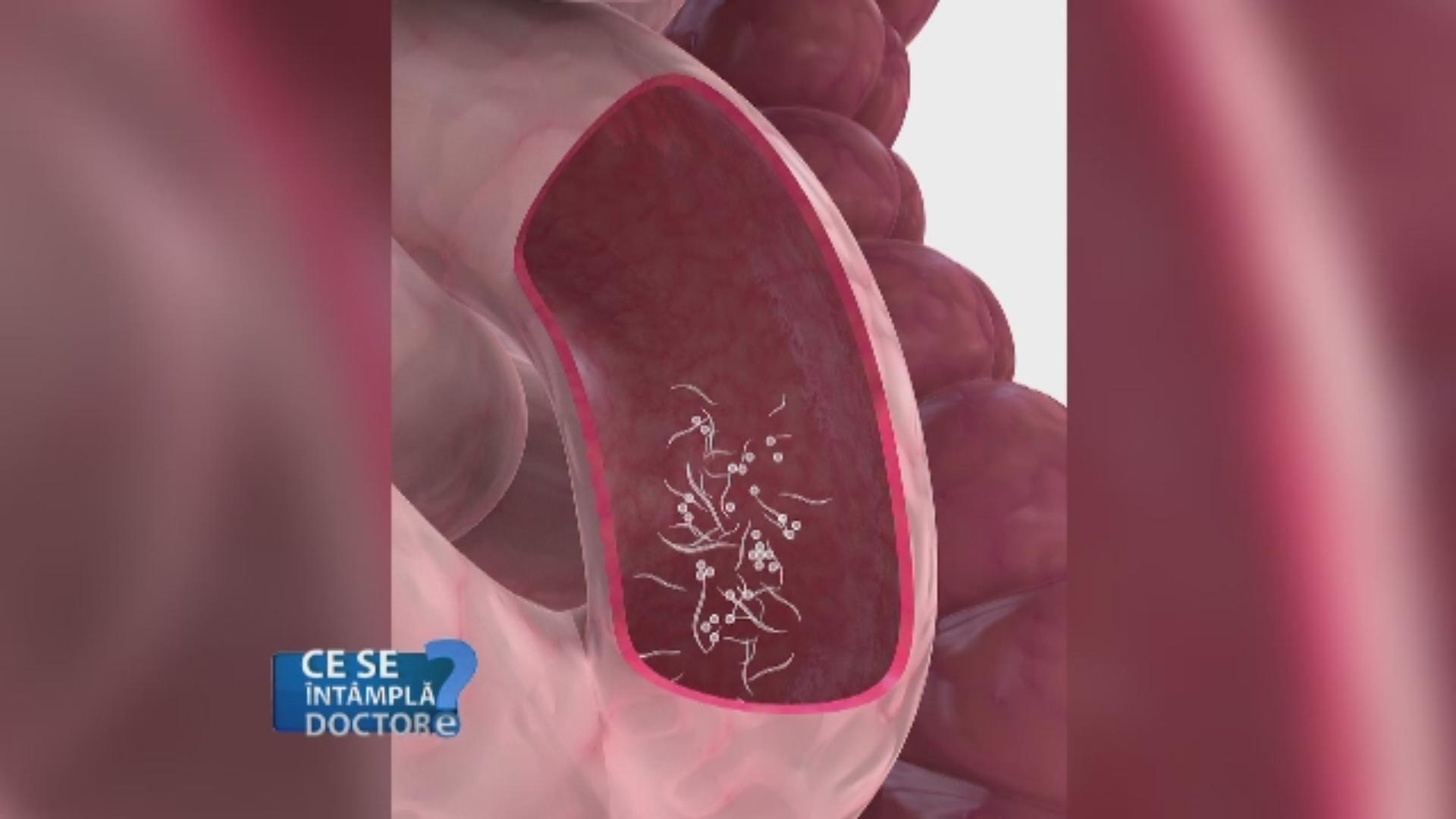 tratamentul paraziților la oameni prin metodă trupa myparasites
