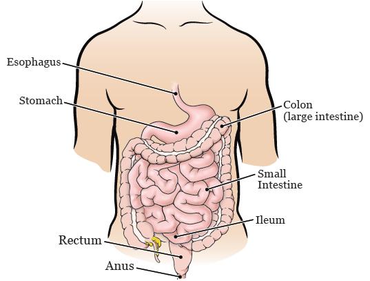 rectal cancer lar cancer limfatic ultima faza