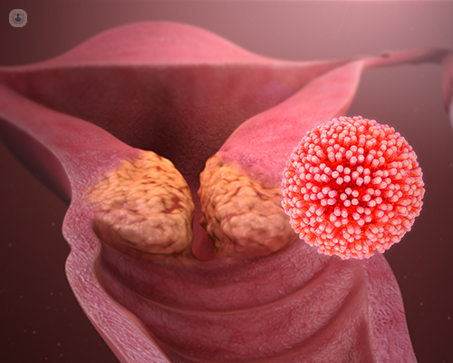 human papillomavirus may cause