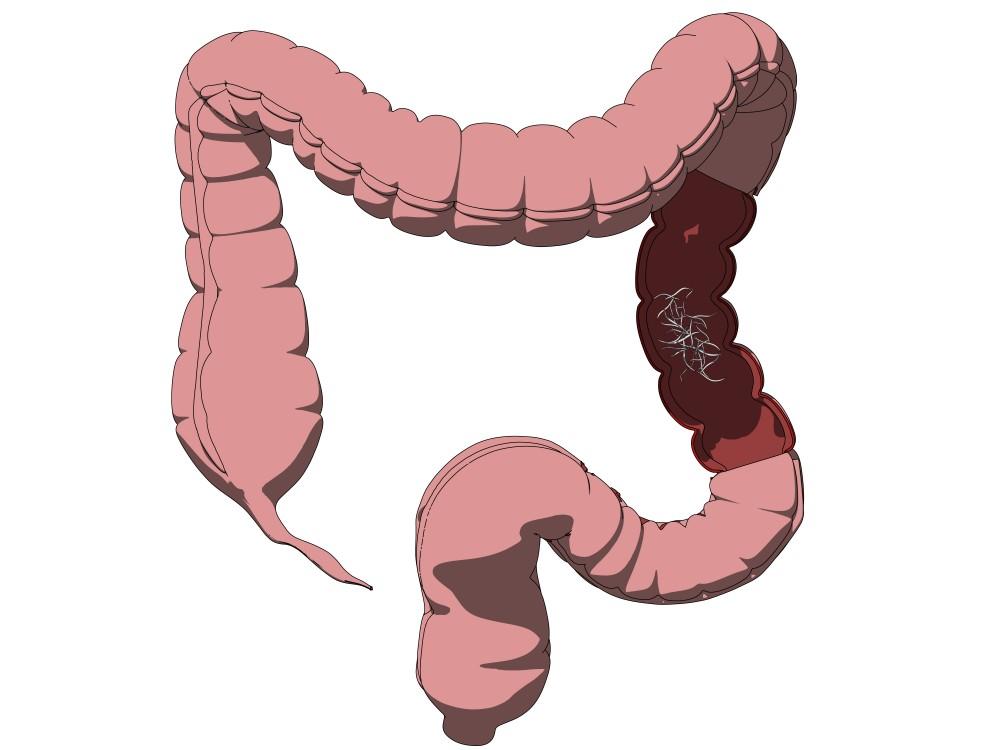 Paraziți viermi roși - Viermii intestinali