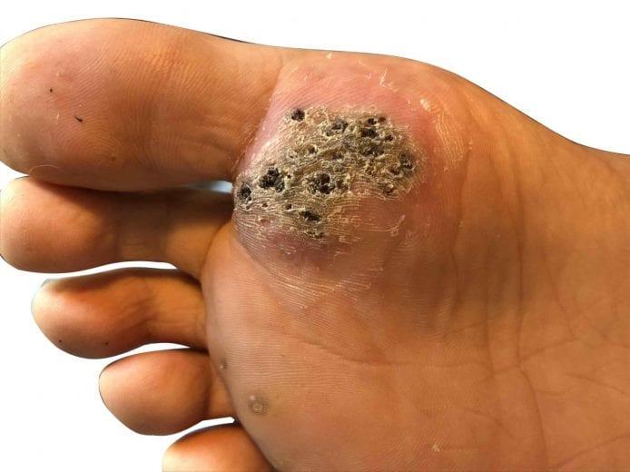 hpv wart virus symptoms cea mai recentă cură pentru viermi