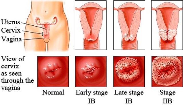 abdominal cancer nhs paraziți protisti umani