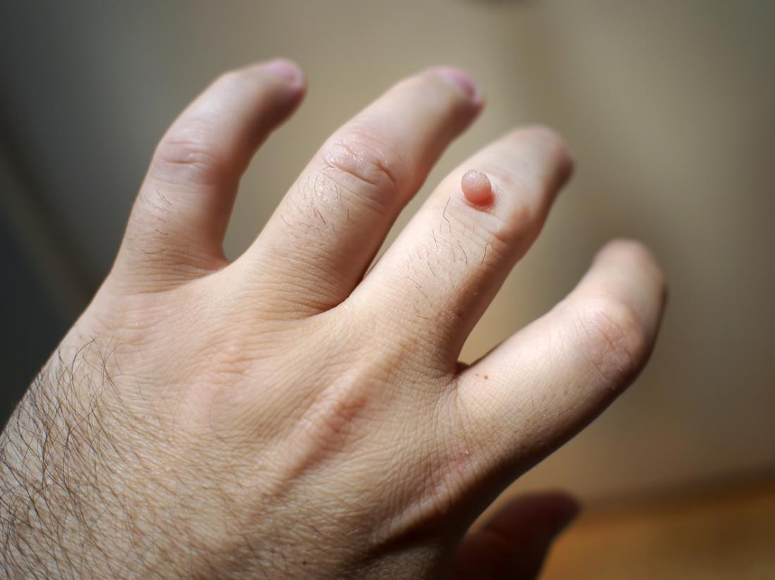 will warts on hands go away