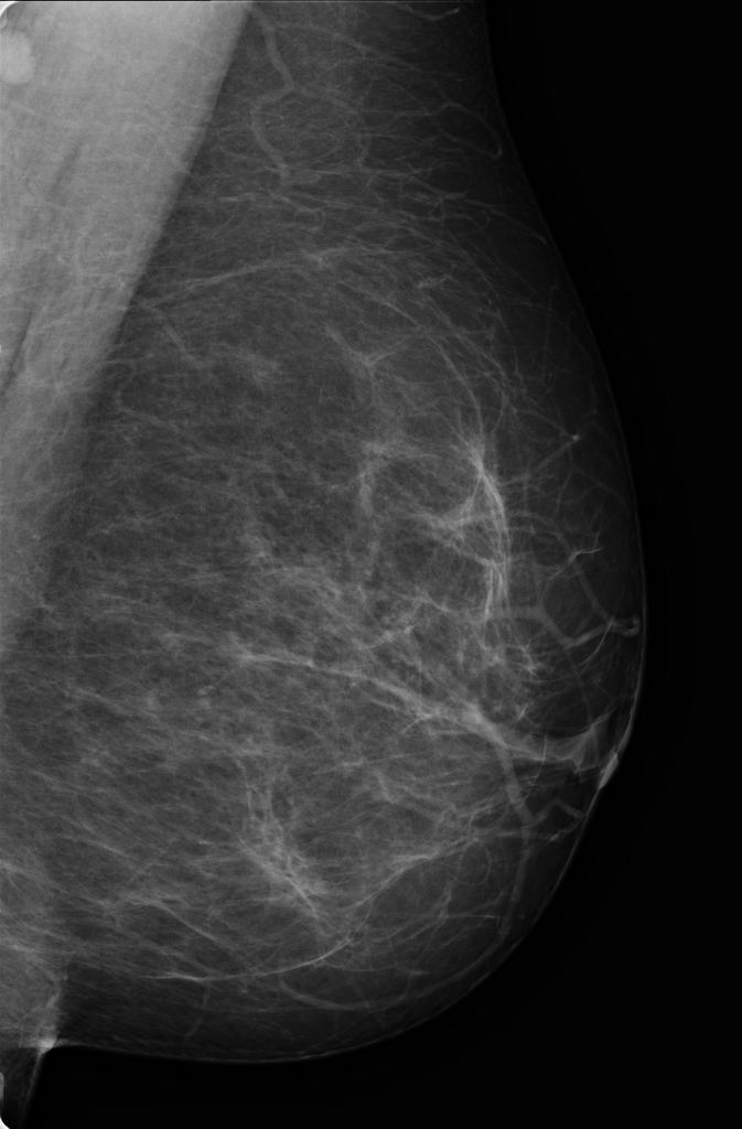 Intraductal papilloma mammogram, Wart treatment nhs