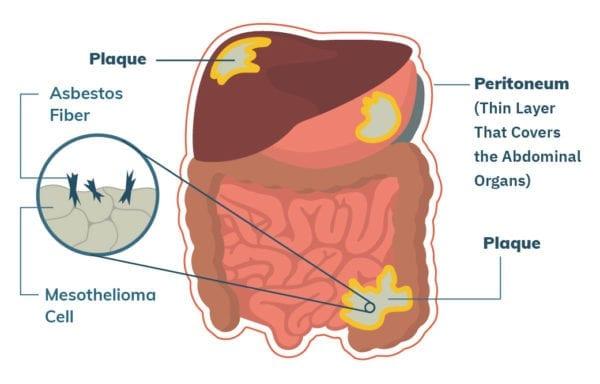 papiloma de garganta sintomas o mulțime de negi