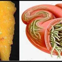 5 remedii care te scapă de paraziţii intestinali - Sănătate > Gastroenterologie - anaairporthotel.ro