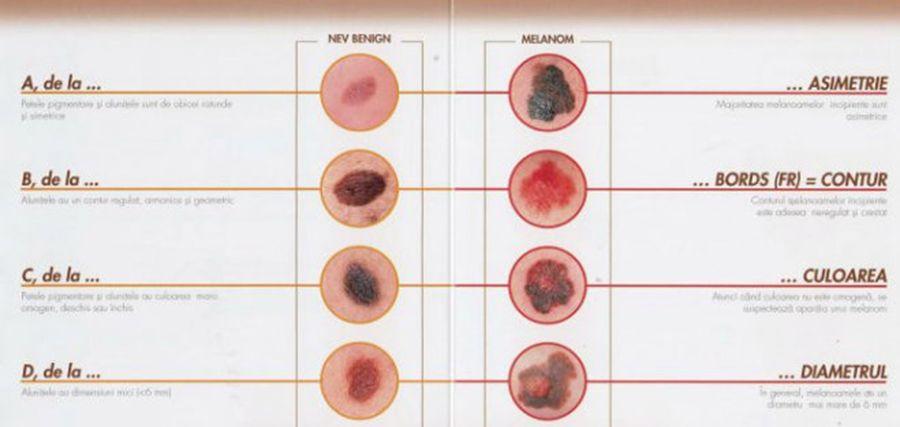 Cancerul de piele: simptome, diagnostic și tratamente