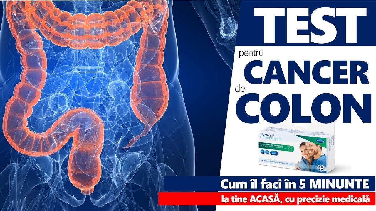 cum să scapi de mirosul verucilor genitale oxiuros antiparasitario