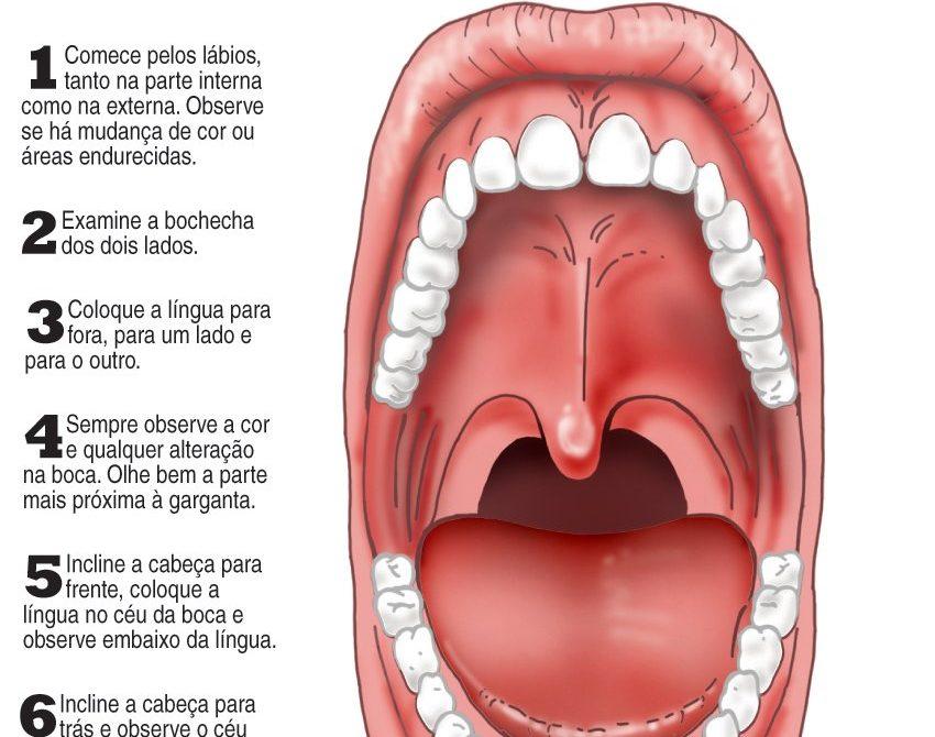 sintomas de cancer de garganta por hpv)