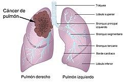 Papillary growth of urothelial tumor - anaairporthotel.ro