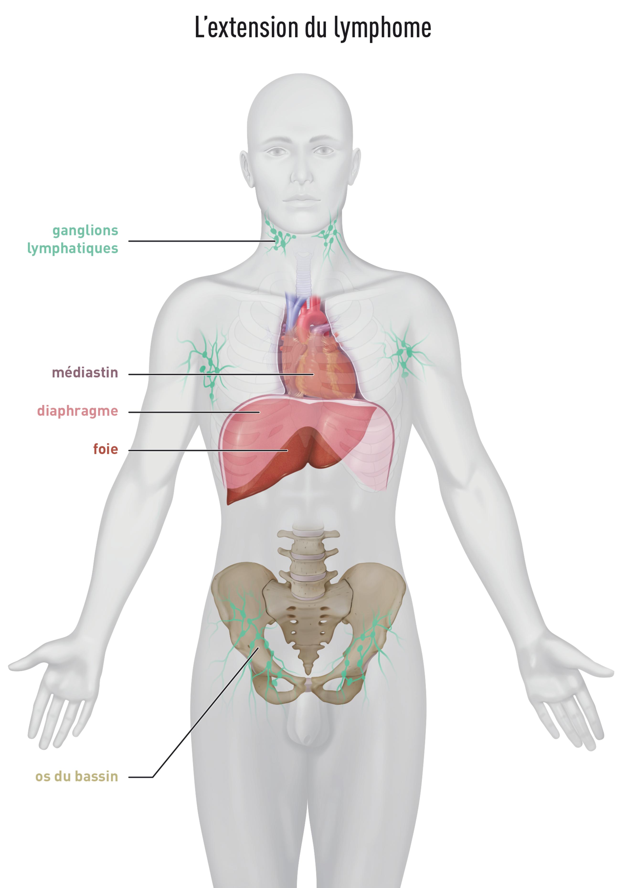 Cancer hodgkin rechute, Papillomavirus sur frottis