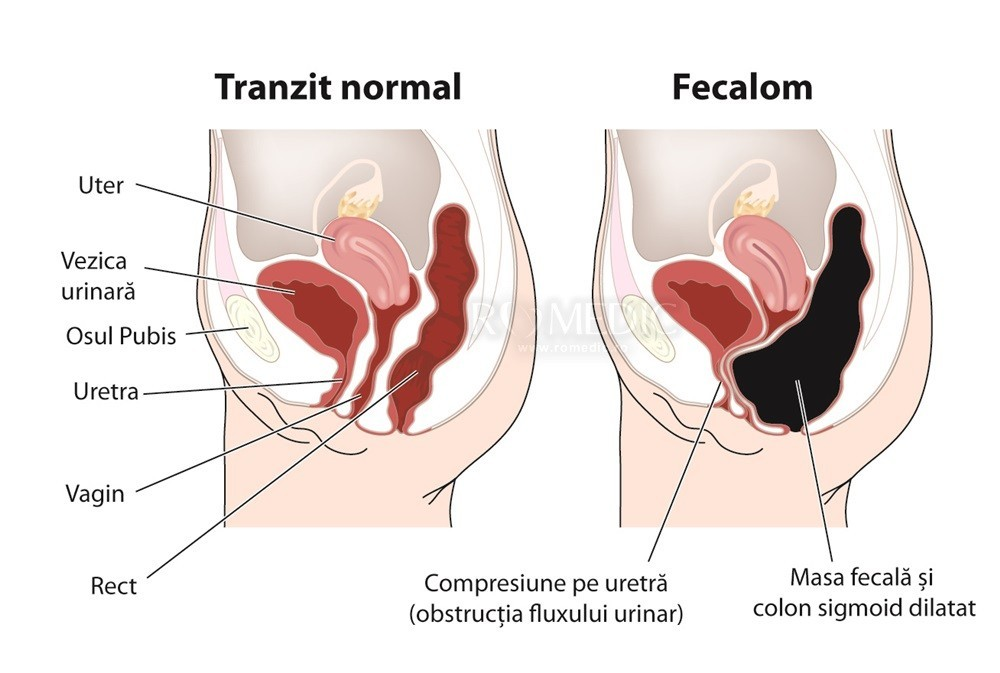 viermi la un adult simptome și tratament tratament paraziti intestinali naturist