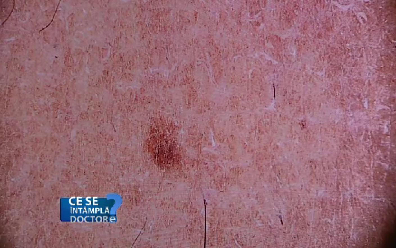 cancerul de piele in romania cancer mamar evolutie